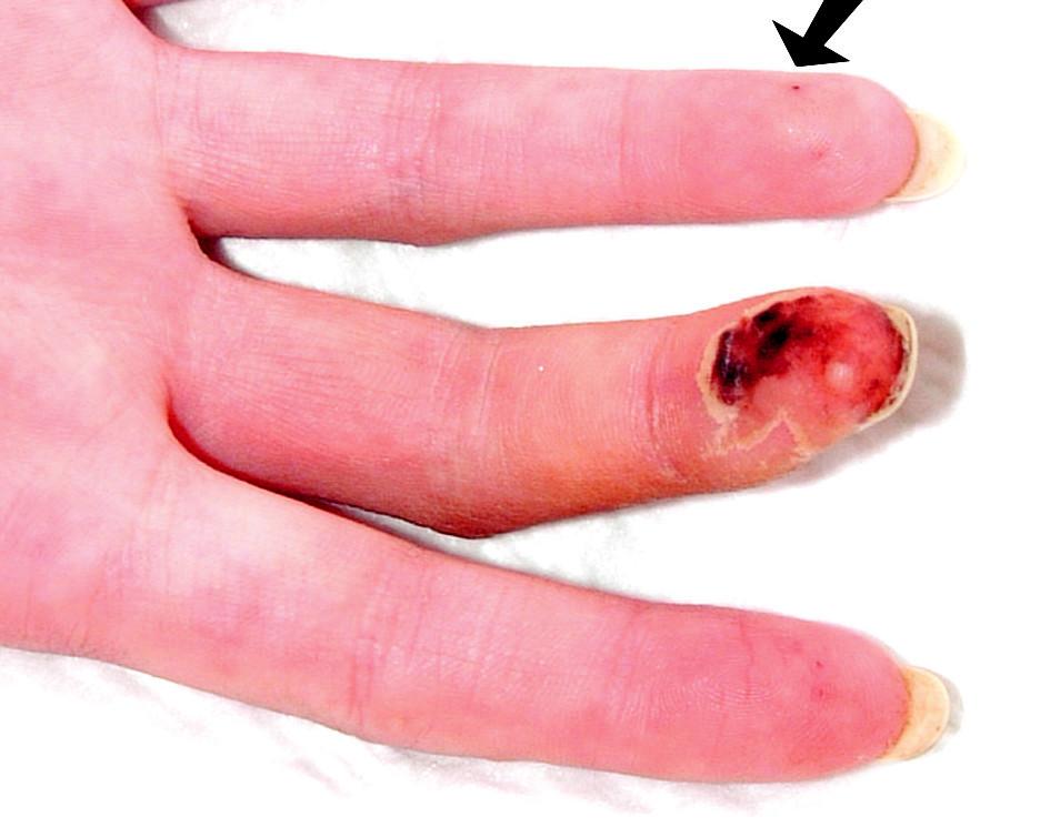 Vaskulitický defekt na prstu ruky, šipkou je označena třískovitá hemoragie.