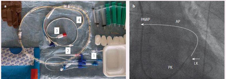 Hemodynamické vyšetření.<br> a) Swan-Ganzův katetr k pravostranné srdeční katetrizaci (1 – zaváděcí pouzdro, 2 – kanylační jehla, 3 – distální port k měření tlaků a proximální port k měření srdečního výdeje, 4 – plicnicový katetr v distální části opatřený nafukovacím balónkem)<br> b) Skiaskopický obraz plovoucího plicnicového katetru s nafouklým balonkem (šipka) zavedeného do dutiny pravé komory (PK) a pig-tail katetru zavedeného do dutiny levé komory (LK) v ověření hodnoty enddiastolického tlaku v LK. Arteria pulmonalis (AP) a tlak v zaklínění plicnice (PAWP)<br> – schematické znázornění poloh katetru při zavedení v distálnější pozici.