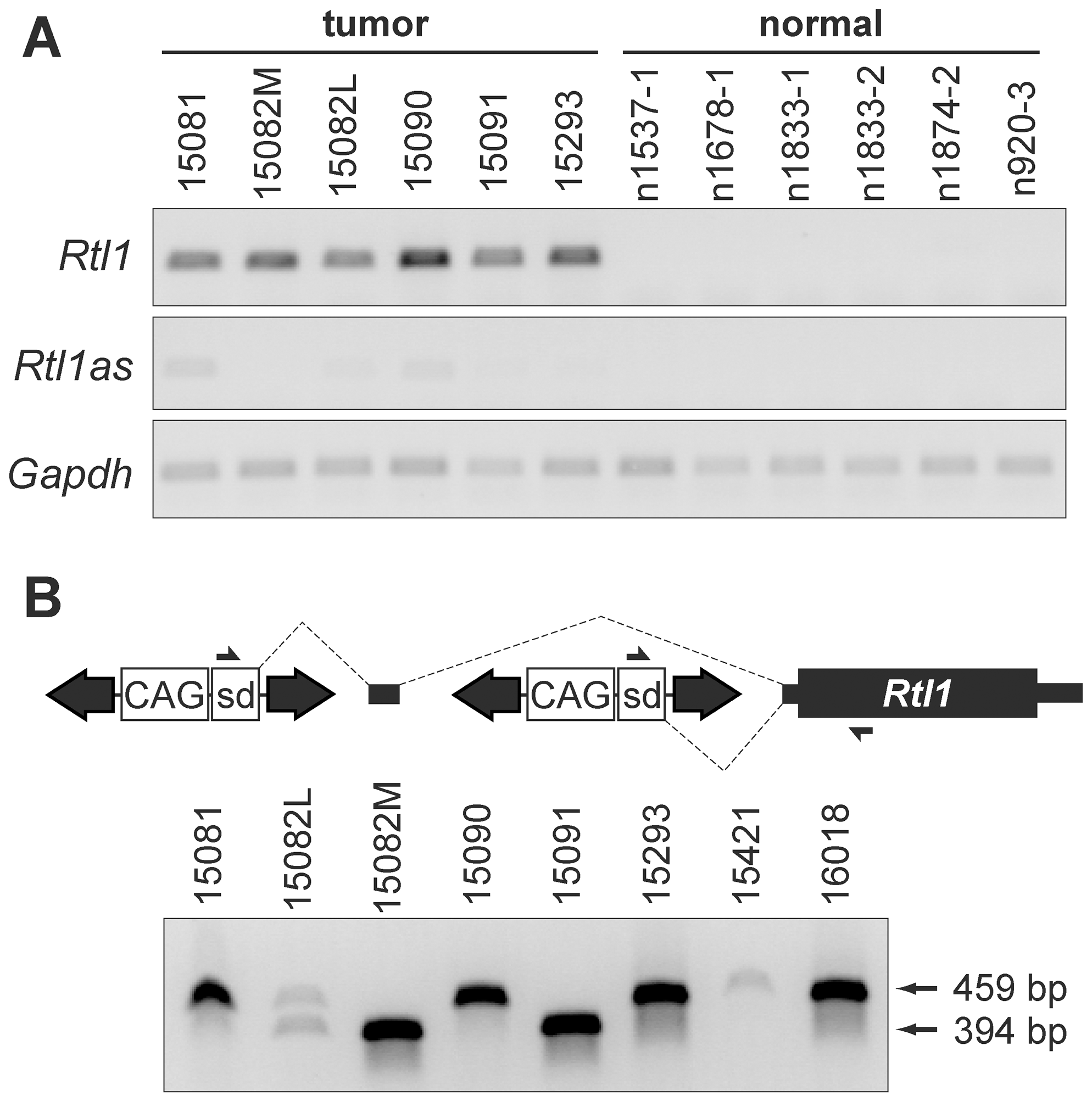 Integrated transposons drive overexpression of <i>Rtl1</i>.