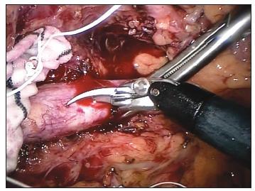 Robotické nůžky – aortotomie Fig. 1. Robotic scissors – aortotomy