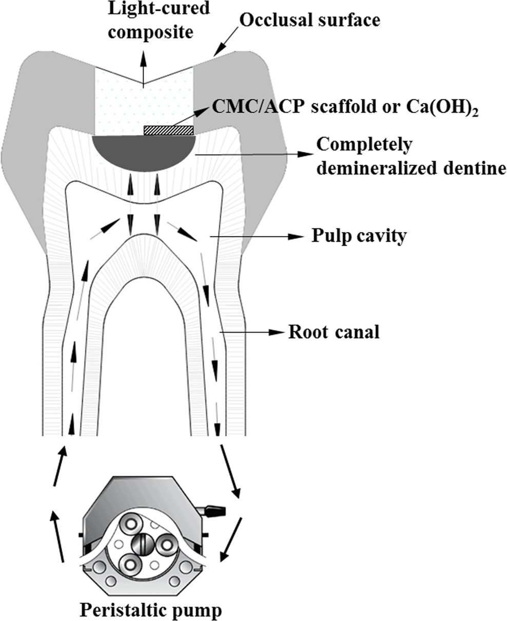 The scheme of tooth model of deep caries.