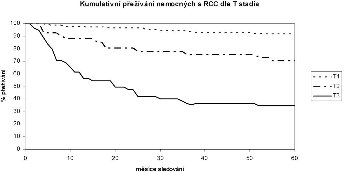 Kumulativní tumor-specifické přežívání nemocných po operaci pro světlobuněčný karcinom ledviny v závislosti na T stadiu tumoru Cumulative tumor-specific surviving of patients with Clear Cell Renal Carcinoma after surgery in dependency on the T stage