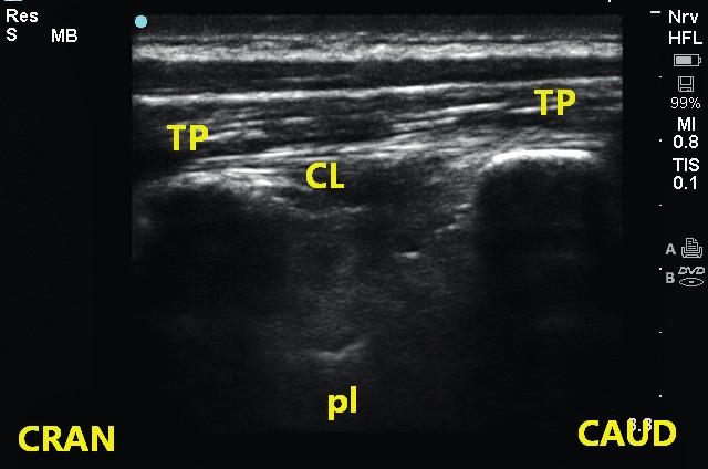 Obr. 11a, 11b Provedení ultrazvukem naváděného paravertebrálního bloku Sonda je položena rovnoběžně s páteří 2–3 cm laterálně od obratlových trnů. Zobrazíme příčné výběžky a linii pleury. Jehlu zavádíme mezi dva sousední příčné výběžky pod ligamentum costotransversarium. TP – příčný výběžek, Pl – pleura, CL – ligamentum costotransversarium
