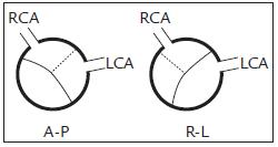 Schematické znázornění fenotypů bikuspidální aortální chlopně (RCA – pravá srdeční tepna, LCA – levá srdeční tepna, A–P – předozadní typ, R–L – pravolevý typ)