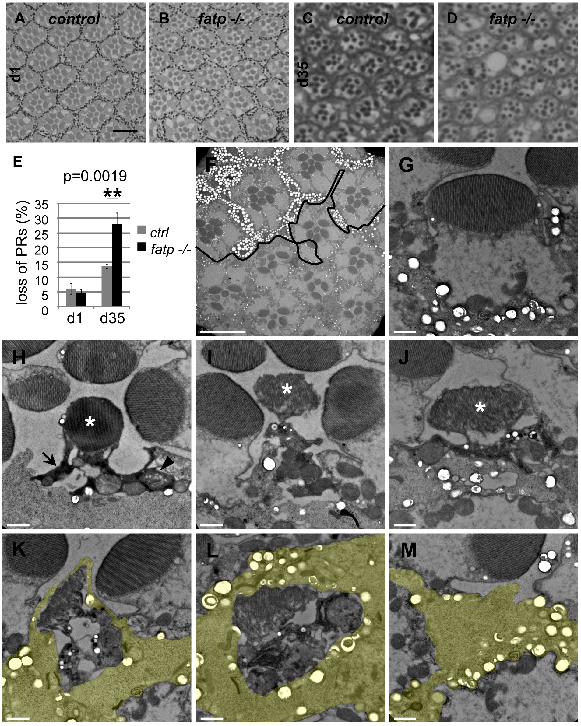 Histological analysis of <i>fatp<sup>−/−</sup></i> PR degeneration.