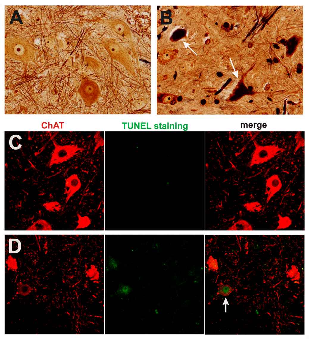 Degeneration of motor neurons in paralyzed mutant <i>TDP</i> transgenic rats.