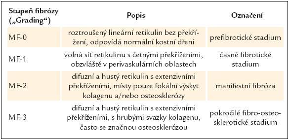 Stupně fibrózy kostní dřeně podle tzv. evropských konsenzus kritérií [35].