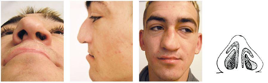 Pacient po úspešnej operácii rozštepu pery vľavo s typickou deformitou vonkajšieho nosa, s poruchou ventilácie cez ľavý priechod.