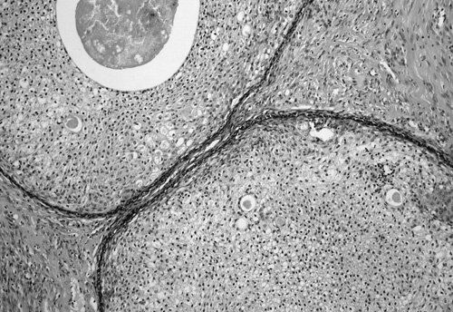 Fig. 2. Nests of squamous cells with small tubules. Note the intraluminal secretion in some tubules (H&E, 200)