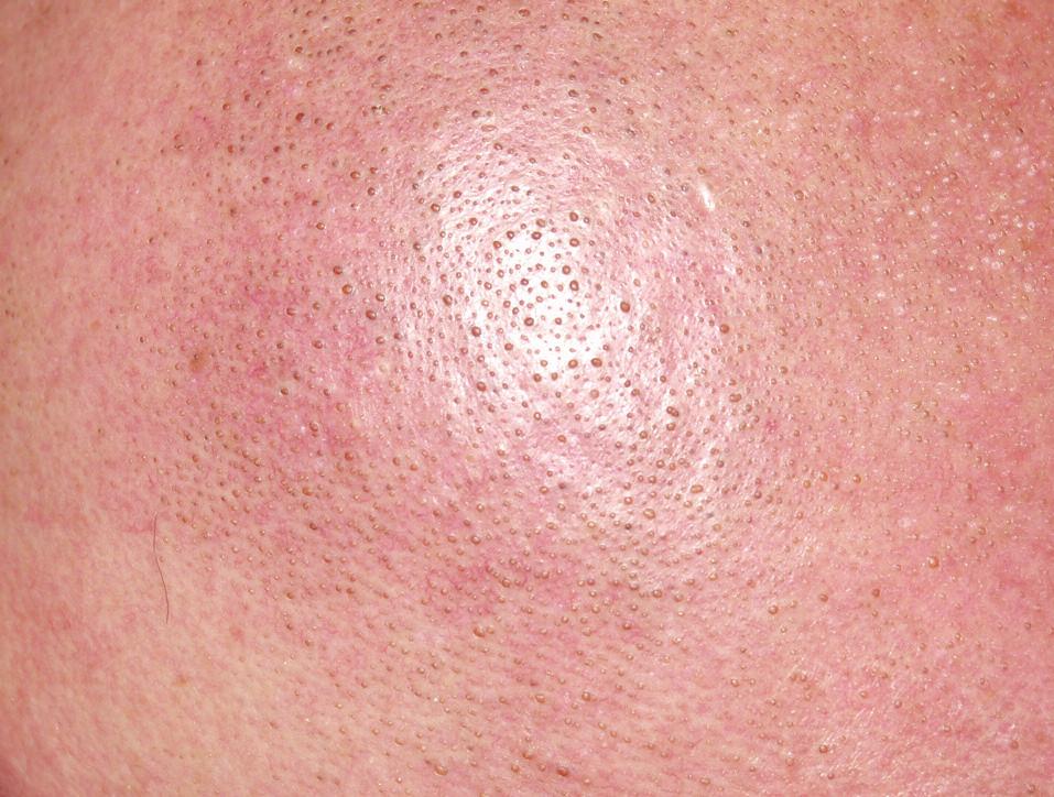 Detail na kůži hlavy bez vlasů s folikulární hyperkeratózou.