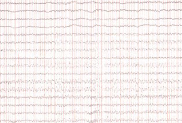 EEG v decembri roku 2005 – rytmická 6 Hz τ-aktivita difúzne, amplitúda do 100 μV.