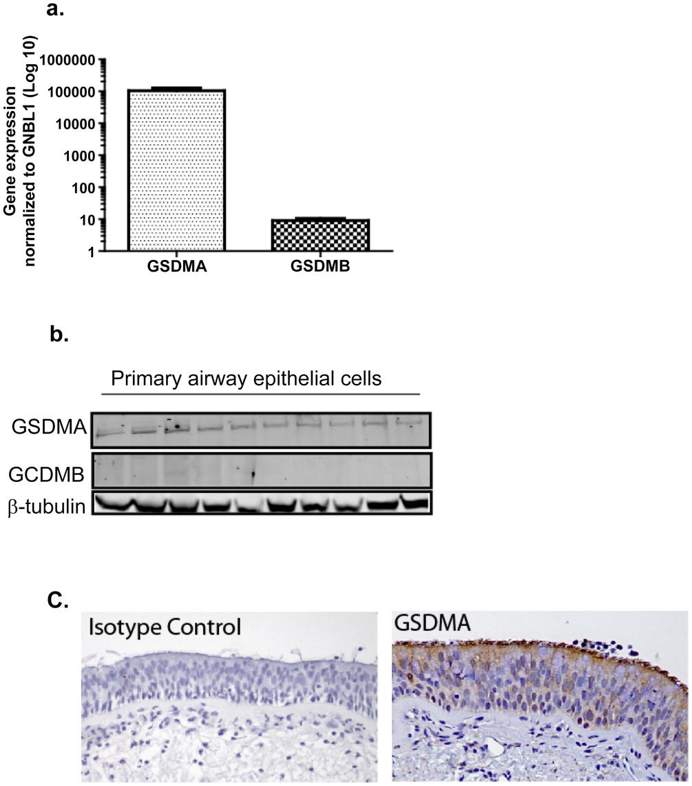 Relative expression of <i>GSDMA</i> and <i>GSDMB</i>.