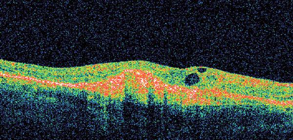 Optická koherenční tomografie – vlhká forma VPMD.