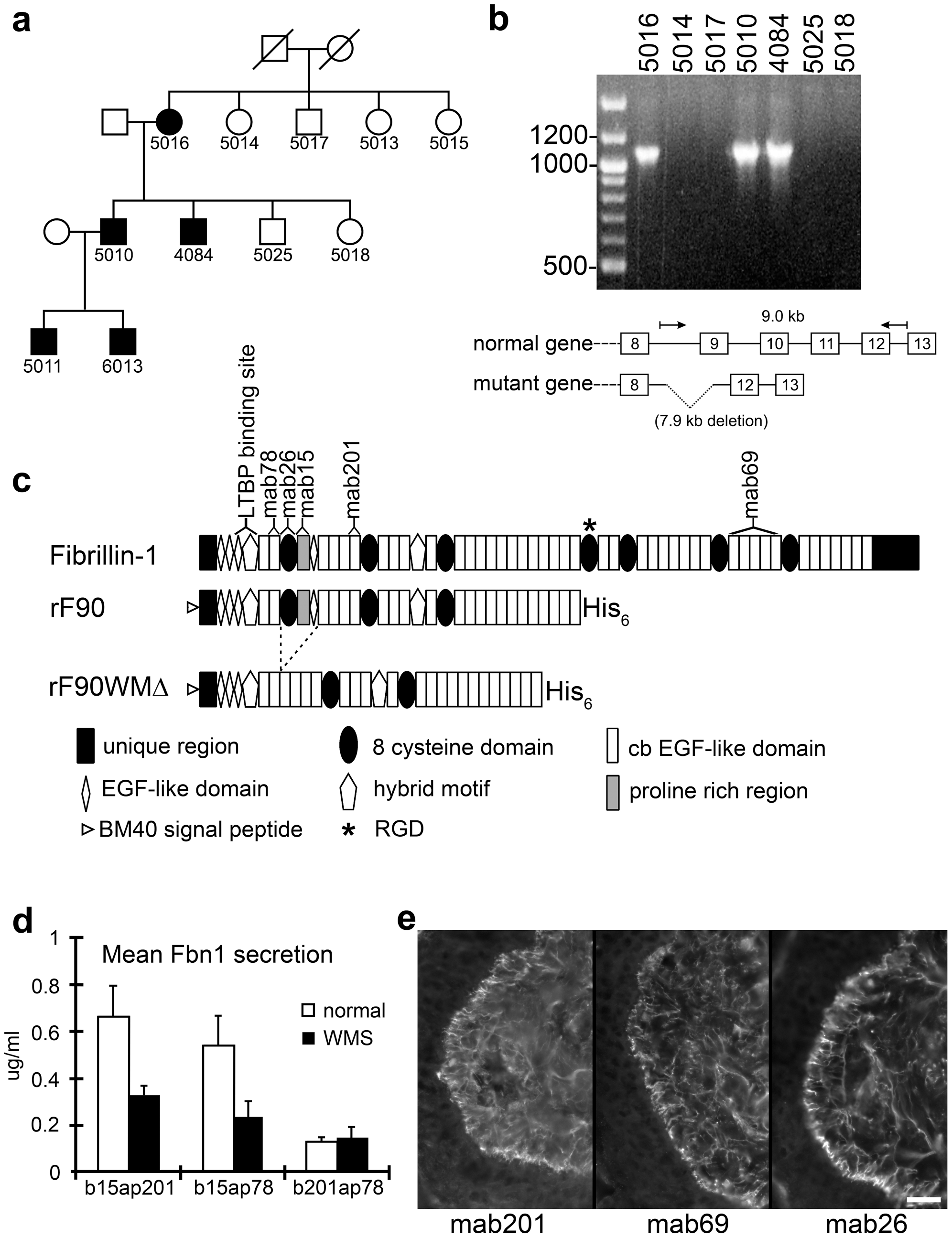 Characterization of a novel genomic deletion in <i>FBN1</i> in a family with WMS.