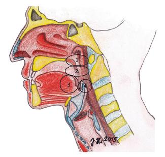 Čtyři hodnocená místa obstrukce v HDC dle Keziriana. 1 – měkké patro, 2 – laterální stěny hltanu, tonzily, 3 – kořen jazyka, 4 – epiglotis.