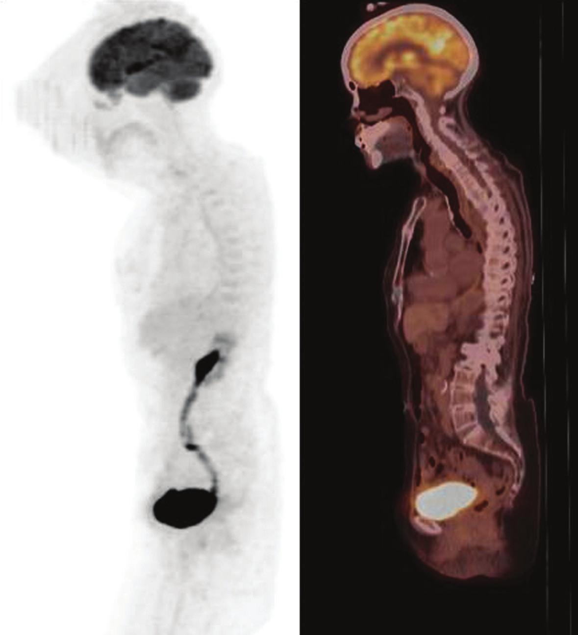 Obr. 2b. PET/CT s FDG, MIP, pohľad zľava. Kontrolné vyšetrenie po týždni liečby imatinib mesylátom (16. 11. 2009). Obraz kompletnej metabolickej odpovede na liečbu (SUVmax 3,5 (-62 %).