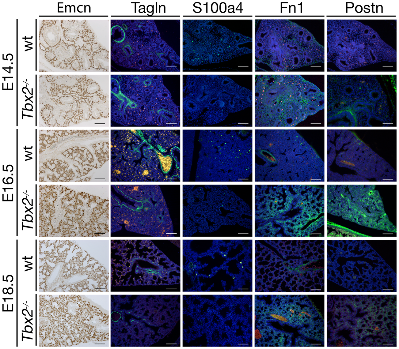 Precocious differentiation in the <i>Tbx2</i>-deficient lung mesenchyme.