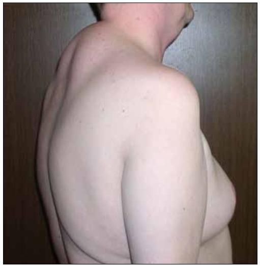 """Lipohypertrofie na hrudníku a v dorzocervikální oblasti (tzv. """"buffalo hump"""")."""