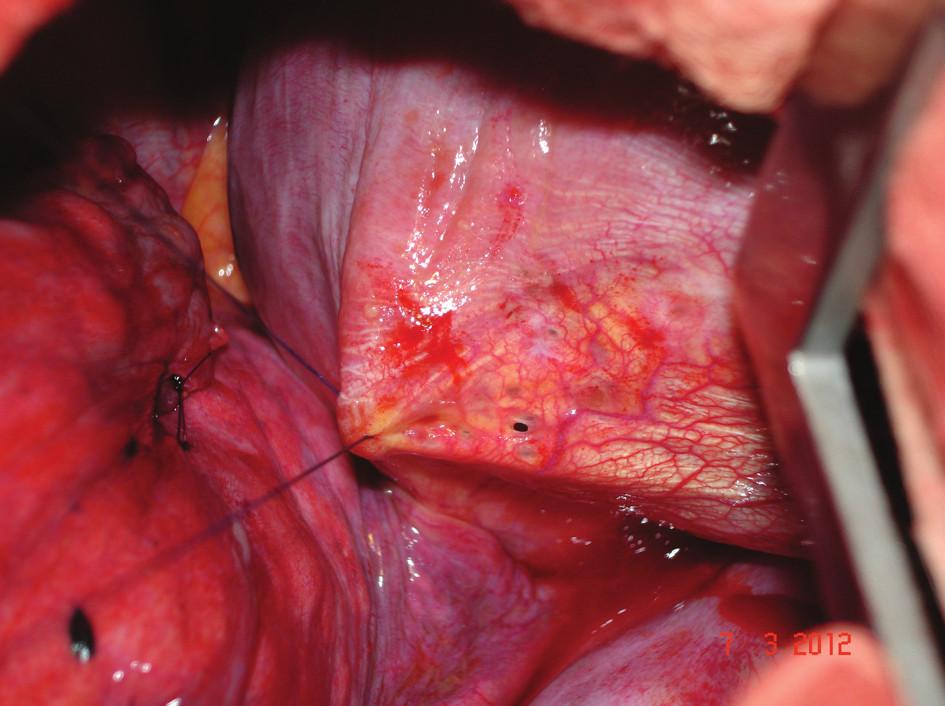 Detail jednoho z bráničních defektů – operační foto Fig. 2: Detail of one of the defects in the diaphragm – photo from the operation