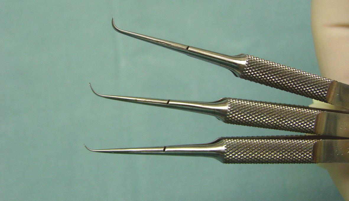 Nůžky používané k odstranění hluboké rohovkové lamely příjemce u operace typu DLEK
