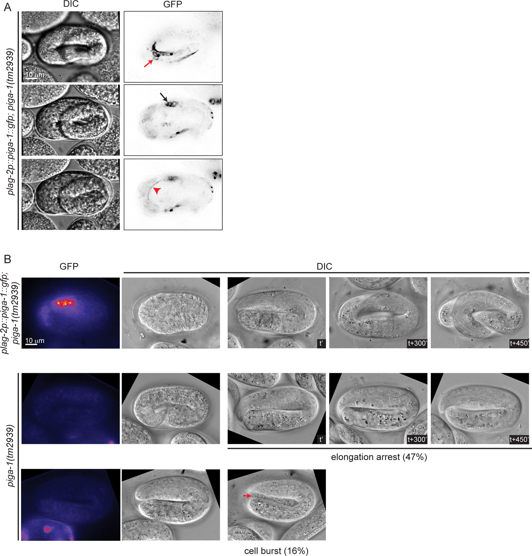 Loss of function of <i>piga-1</i> shows similar phenotypes to <i>pigv-1(qm34)</i> mutant embryos.