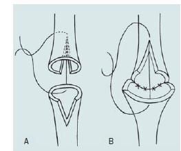 Anastomóza konec ke konci. A – Přerušení močové trubice a spatulace obou uretrálních konců. B – Přímá anastomóza obou konců bulbární uretry.