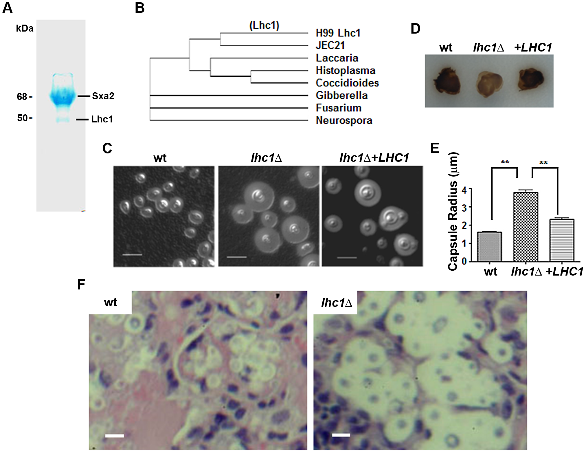 Identification of a capsular-adherent putative lactonohydrolase from <i>C. neoformans</i> and role in virulence-related phenotypes.