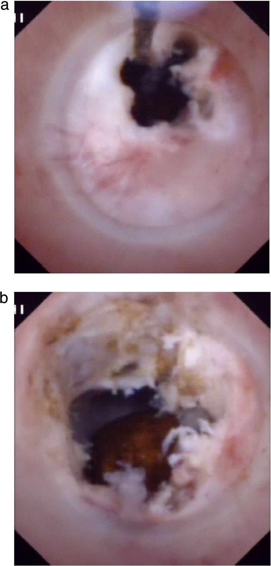 Choledochoscopic high-frequency needle-knife electrotomy was performed for anastomotic strictures: a) The strictured opening is cut gradually under direct vision with no sign of bleeding. b) The fibrous tissue of the anastomosis has been removed and a stone can be seen in intrahepatic bile duct