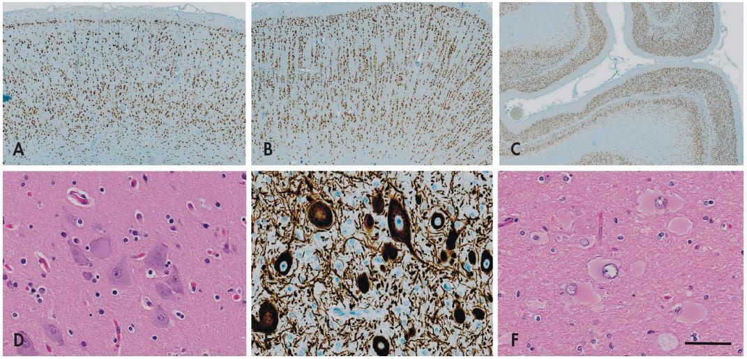 Fokální kortikální dysplazie (FCD). Imunohistochemický průkaz neuronálního jaderného antigenu neuN prokazuje normální hexalaminární uspořádání nemalformované mozkové kůry (A). V případě <em>fokální kortikální dysplazie I. typu</em> dochází k tvorbě clusterů a vertikálních neuronálních sloupců v postižené kůře (B). Vzácně může být porucha laminárního uspořádání nikoli vertikální (radiální) ale v horizontální (tangenciální) rovině - FCD typu IB v nové klasifikaci ILAE 2011 (C). <em>Fokální kortikální dysplazii II. typu</em> charakterizuje přítomnost tzv. dysmorfních neuronů, které se vyskytují jednotlivě nebo ve skupinkách nepravidelně v celé šíři kůry, mají bizarní tvar a jejich velikost je často větší než u Betzových pyramidových buněk (D). Tyto buňky vykazují abnormální reakce při průkazu neuronálních markerů, zejména fosforylovaných neurofilament (E). U FCD typu IIB se k cytoarchitektonickým poruchám s dysmorfními neurony přidává přítomnost tzv. balónovitých buněk. Jsou to veliké buňky vyskytujících se jednotlivě nebo ve skupinách v oblasti přechodu mezi bílou hmotou a kůrou, mají obšírnou bledou eozinofilní cytoplazmu a excentricky uložené vezikulární jádro (F). Měřítko - 1000 μm (A), 800 μm (B), 200 μm (C), 100 μm (D-F).