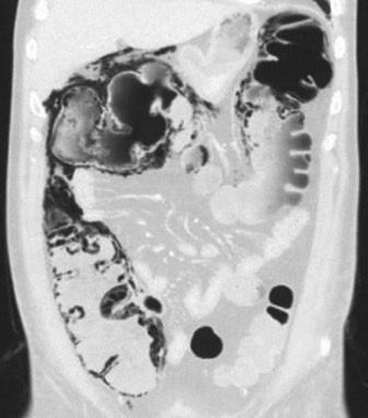 CT, koronární řez, plicní okno. Plyn ve stěně pravého tračníku, pneumoperitoneum.