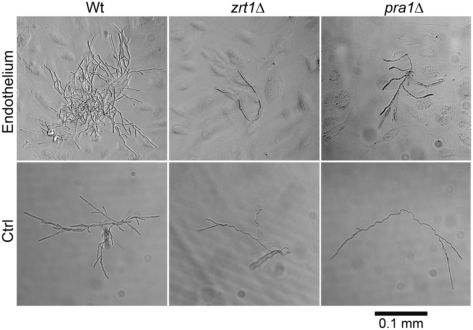 <i>ZRT1</i> and <i>PRA1</i> are required for microcolony development on endothelia in the absence of exogenous zinc.