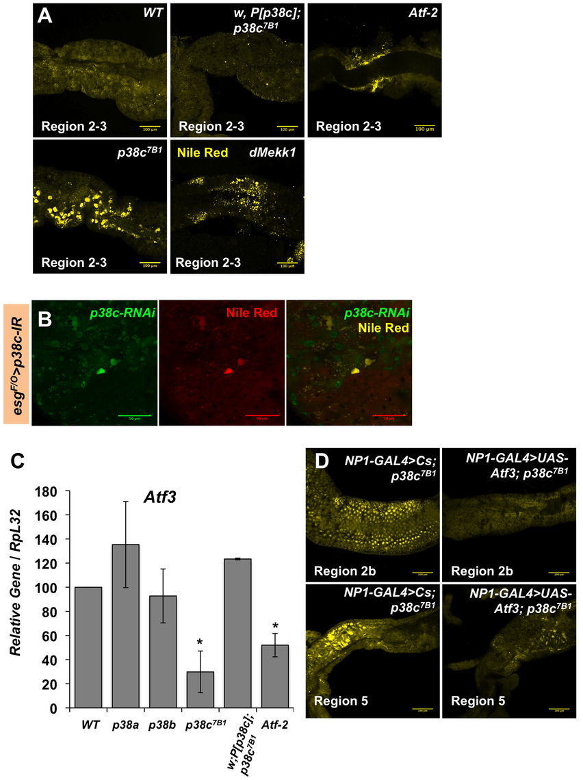p38c and Atf3 function in a same pathway to control lipid homeostasis.