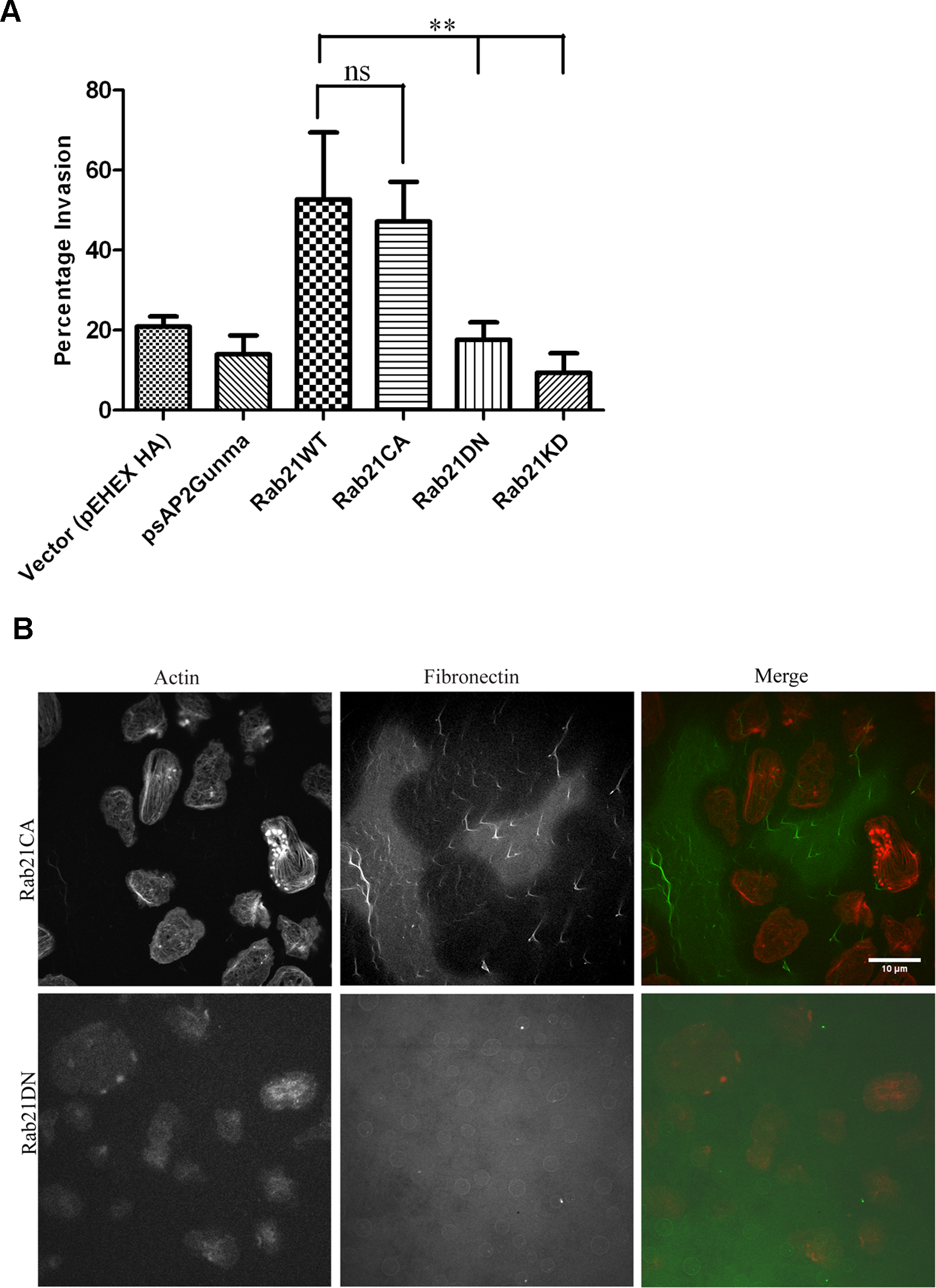 Rab21CA over-expression is associated with increased invasion and matrix degradation.