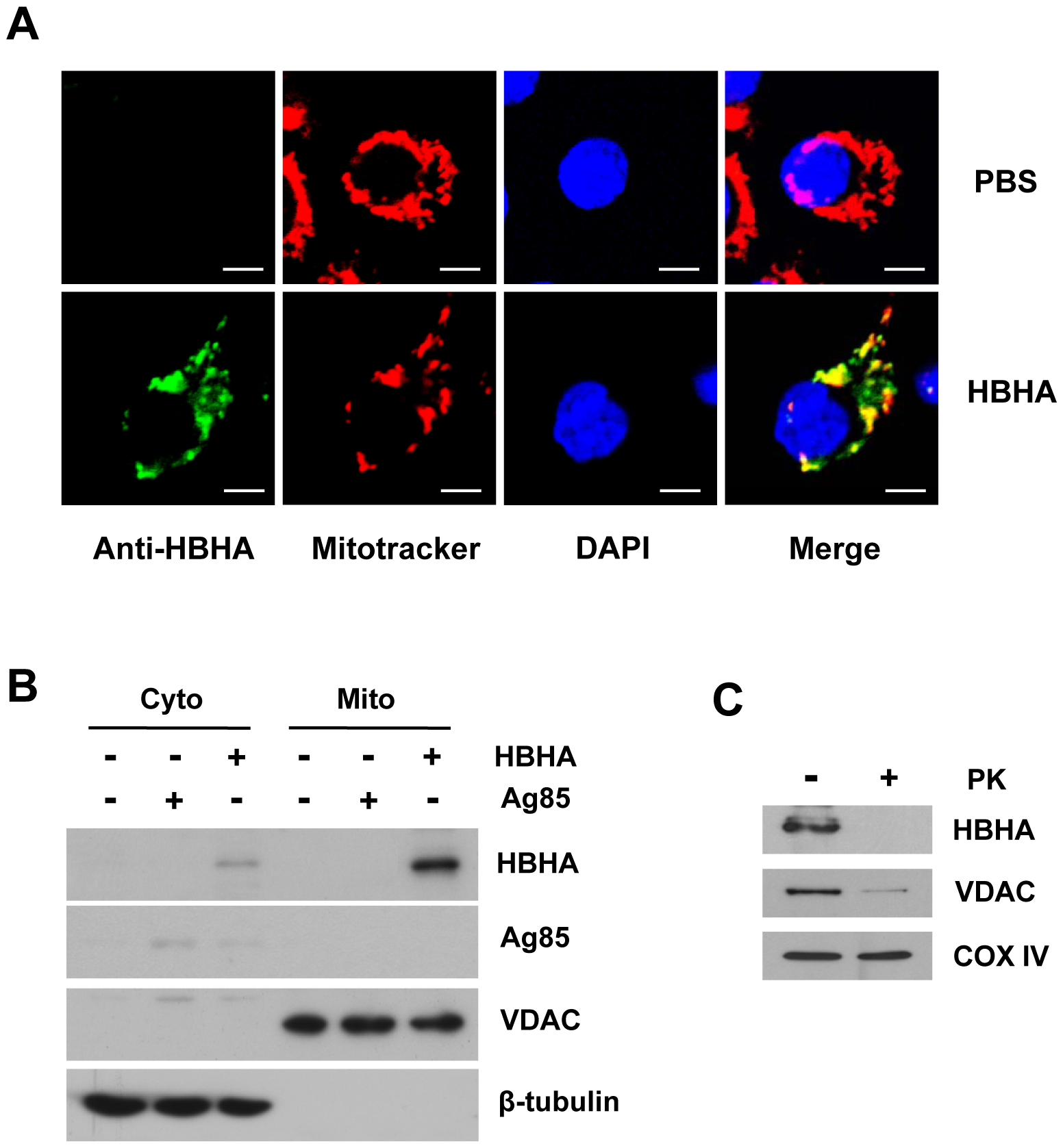 Subcellular localization of HBHA in macrophages.