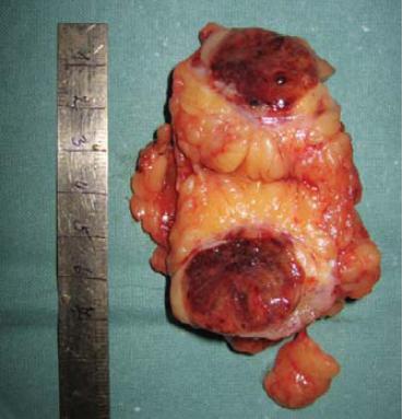 Resekovaný tumor.