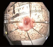 Vzorek po endoskopické resekci vypnutý na korek. Fig. 5. ER specimen.