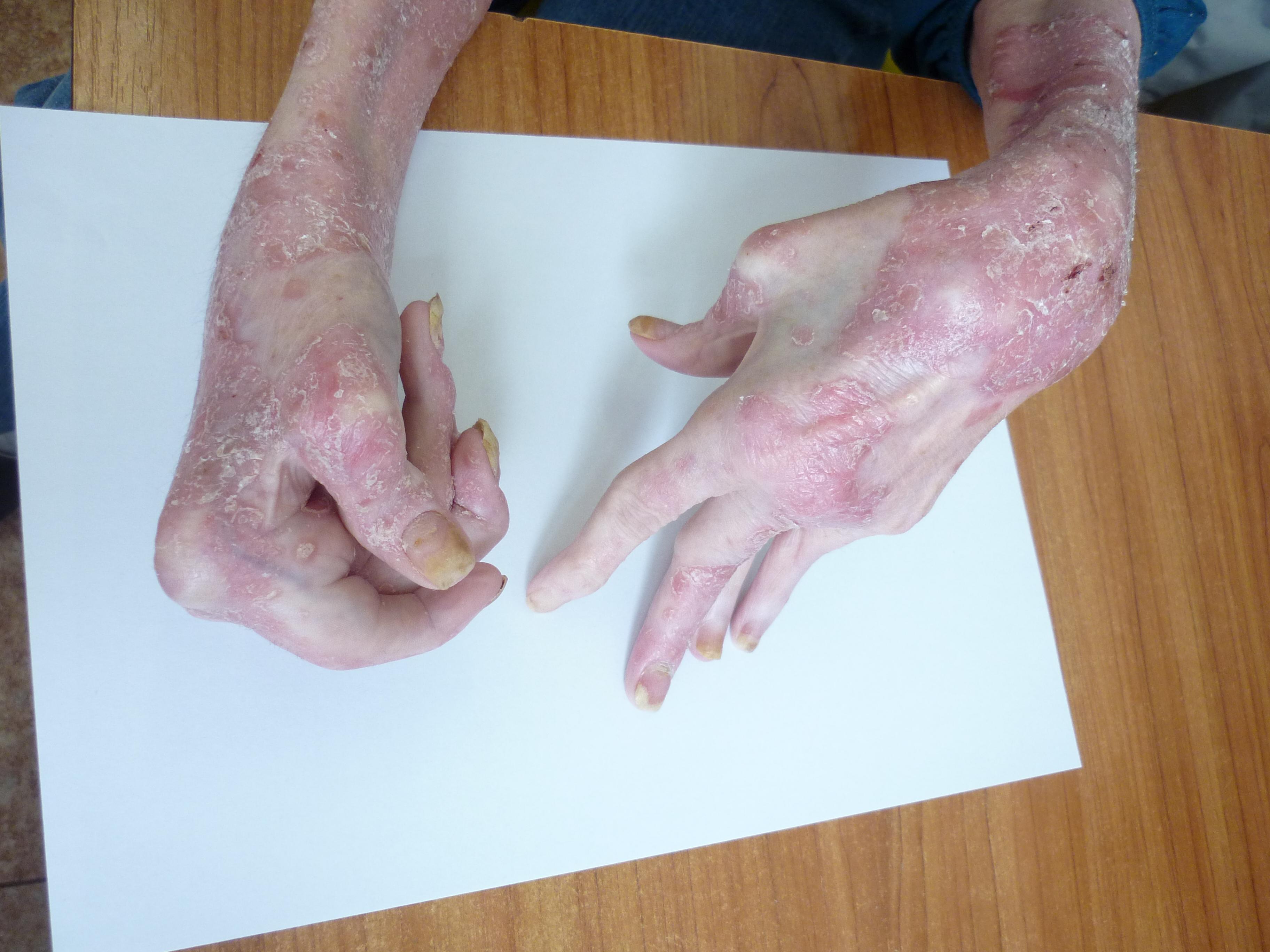 Mutilující postižení kloubů u pacienta s PsA