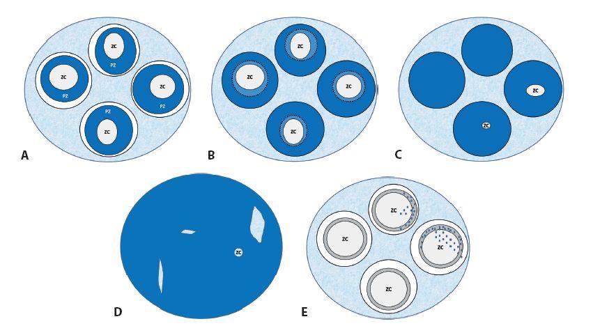 Schéma 2. A. MCL, rast na spôsob plášťovej zóny okolo zárodočných centier folikulov. B. MCL, rast na spôsob marginálnej zóny. C. MCL, nodulárny rast, možné (mikro-)reziduá centier folikulov. D. MCL, difúzny spôsob rastu, možné mikroreziduá pôvodných štruktúr. E. MCL, možná minimálna infiltrácia pri relapse (CD20+/PAX5+/CD5+/cyklín D1+).