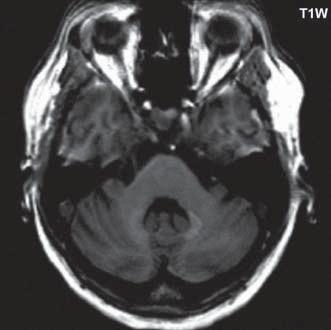 T1 vážený obraz, v oblasti nucleus dentatus bilaterálně je patrná zvýšená intenzita signálu. Fig. 1. T1-weighted image, in the dentate nucleus bilaterally, there is increased signal intensity.