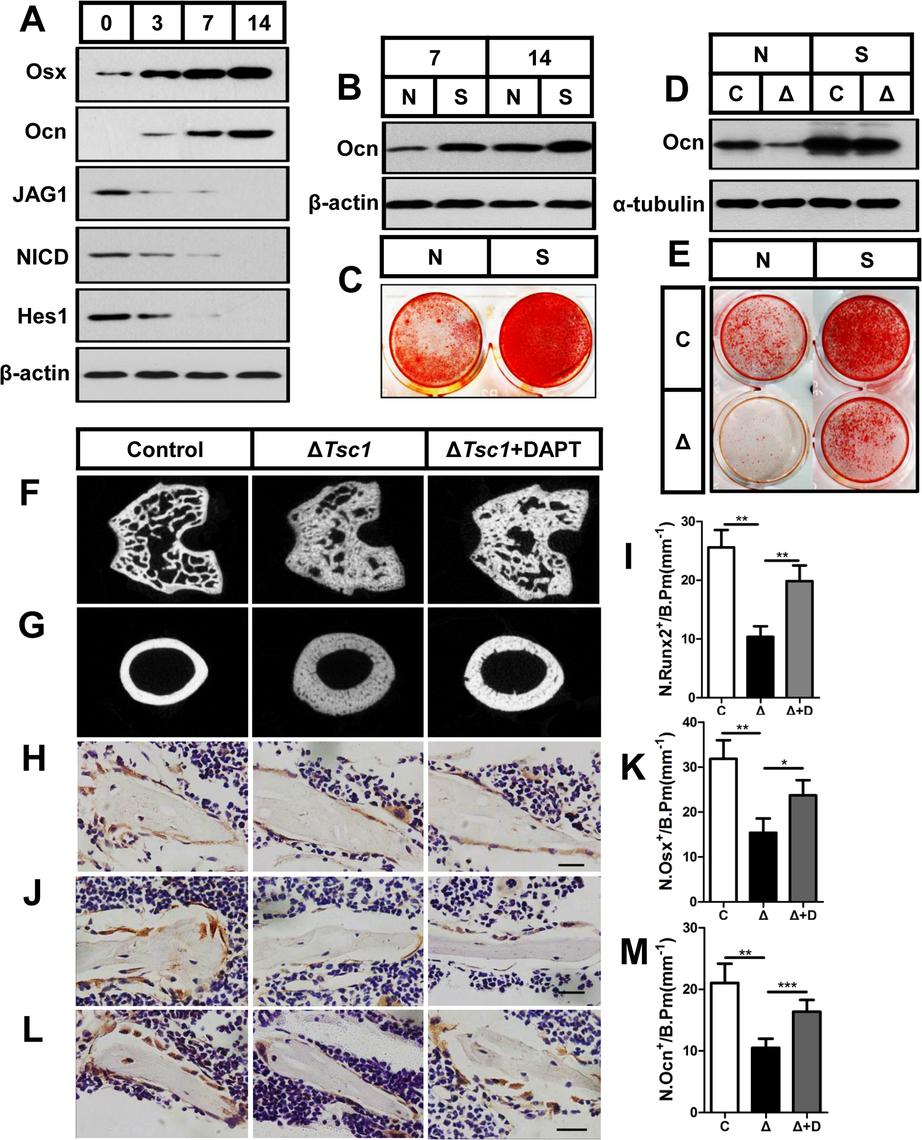 mTORC1 impairs osteoblast differentiation through the Notch pathway upstream of Runx2.