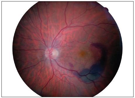 Nález na fundu levého oka před léčbou