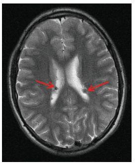 Vícečetné subependymální noduly (SEN) v oblasti postranních komor mozku oboustranně (šipky) na MR vyšetření mozku v T2 vážených obrazech u 17letého chlapce