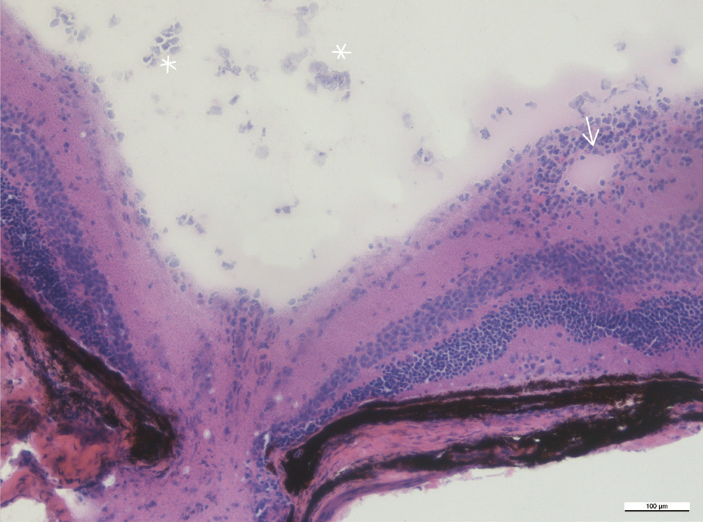Infiltrace v okolí sítnicové cévy v blízkosti terče zrakového nervu (šipka), ve sklivci jsou zánětlivé buňky (hvězdičky), zvětšení 20x