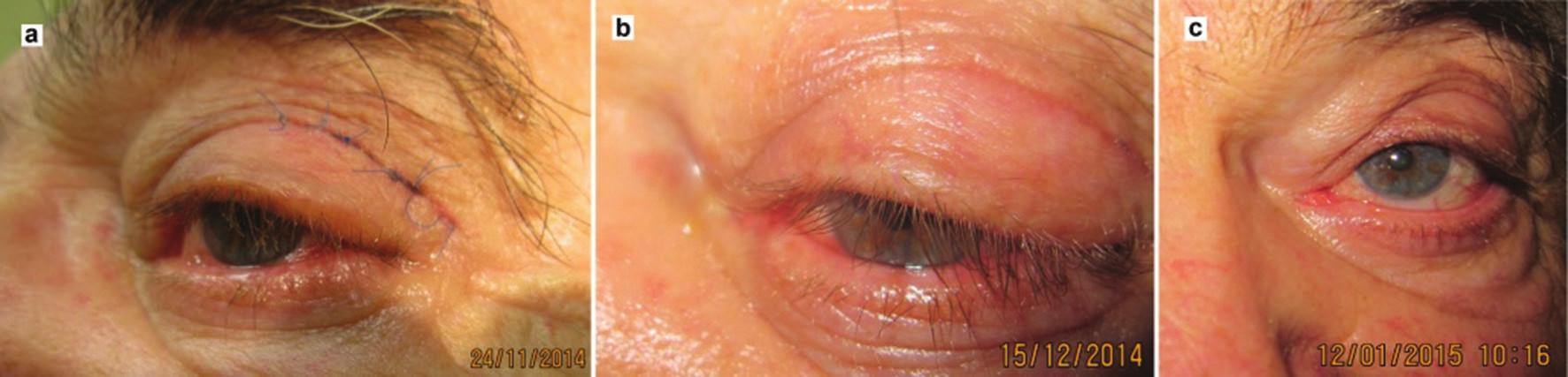 Klinický nález pri kontrolnom vyšetrení: a) 2 týždne po odstránení drenu, b) 1 mesiac po zákroku, c) 2 mesiace po zákroku