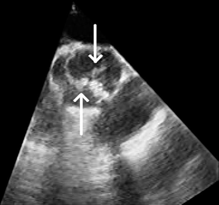 Obr. 1 a 2. Echokardiografický obraz akutní infekční endokarditidy dvojcípé aortální chlopně.