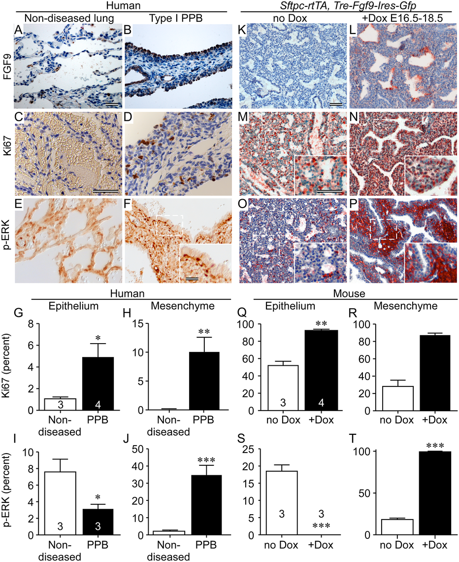 FGF9 overexpression in Type I PPB phenocopies ectopically expressed FGF9 in mouse lung epithelium.