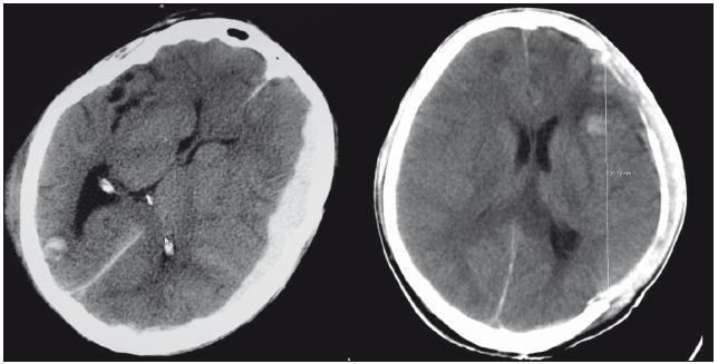 Pacient s ASH před a po provedení hemisferální DK.