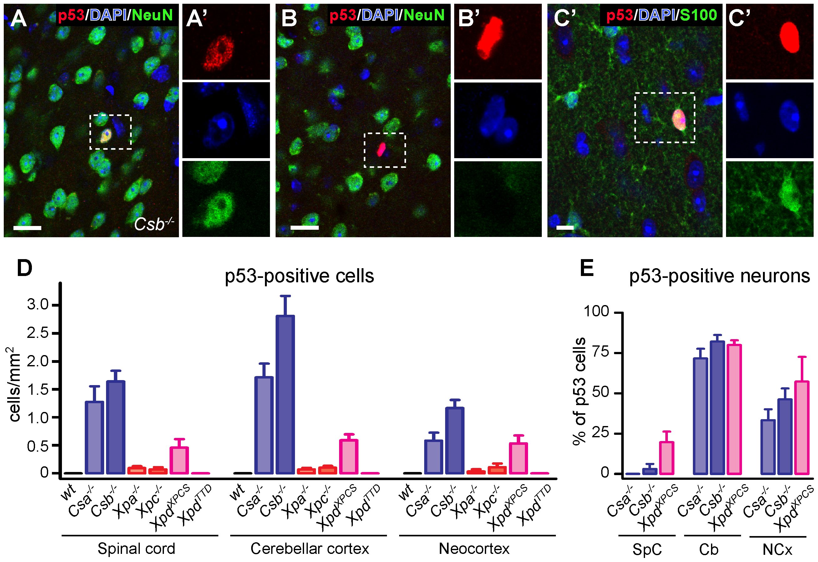 p53 expression in brain and spinal cord of adult NER– and TCR–deficient mice.