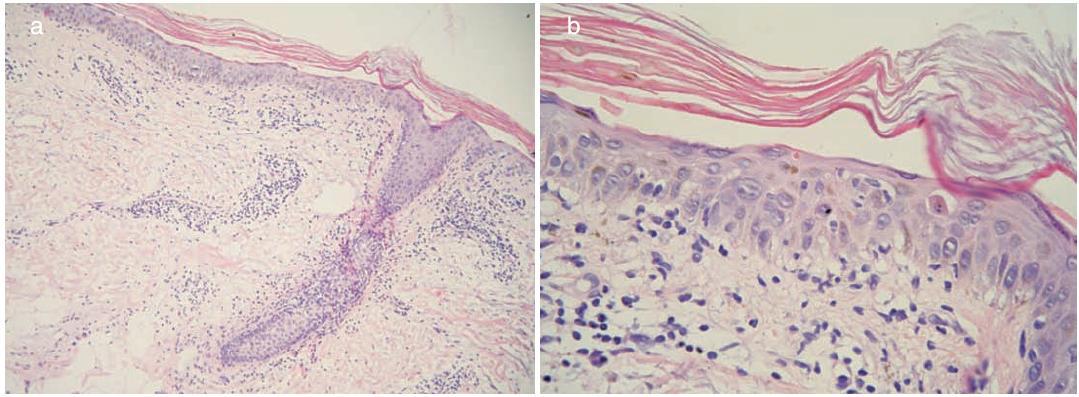 Histopatologický obraz a) a b)