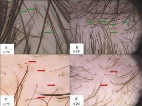 Trichoskopie frontální krajiny u androgenní alopecie